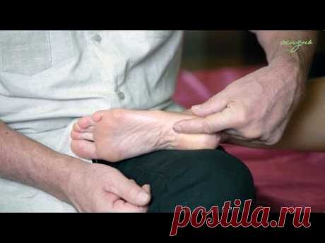 Calcaneal spur. Treatment in house conditions