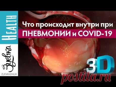 Что будет, если вы подхватите коронавирус? 3D анимация