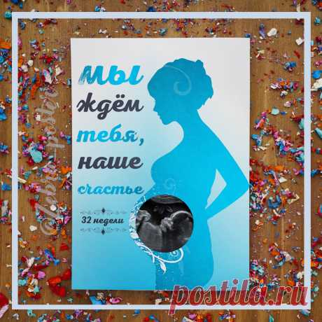 Постер со снимком УЗИ. Стоимость 100 руб. за электронную версию для самостоятельной печати