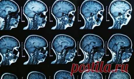Пять мифов о мозге