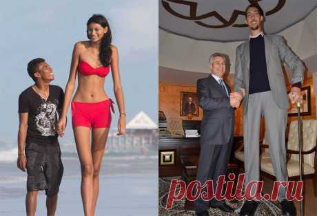 Как выглядит самый большой человек в мире (10 фото)