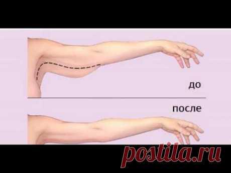 Как подтянуть верхнюю часть предплечья.(часто обвисшая чать руки после 45 лет или последствия похудения)