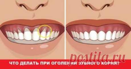 Оголилась шейка зуба? Узнай, как вернуть десну обратно! Домашнее лечение.