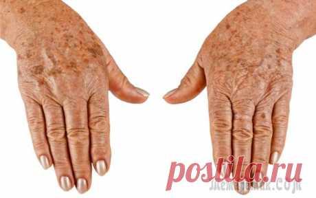 Возрастные пятна – причины и способы устранения...