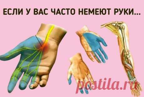 Причины онемения рук. Срочно к врачу