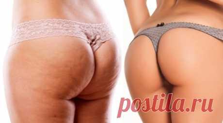 Польза диеты для борьбы с целлюлитом | Женский портал Польза диеты для борьбы с целлюлитом — советы экспертов