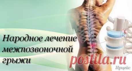 Народное лечение межпозвонковой грыжи.А.Маматов