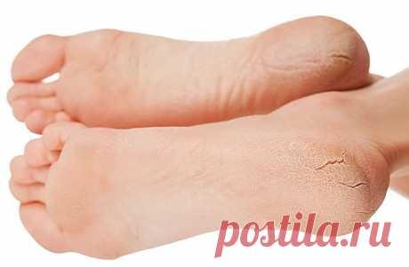 Трещины на пятках – причины и как лечить в домашних условиях