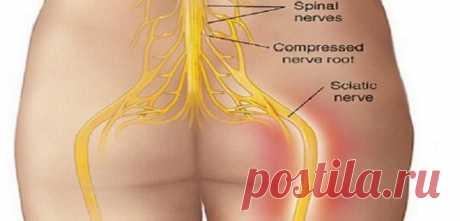 Попрощайтесь с болью в спине с этим естественным методом. Успешно в 95% случаев