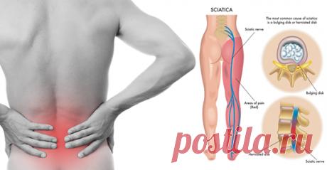 8 растяжек ишиаса, чтобы предотвратить и облегчить боль в пояснице - Журнал для женщин