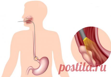 Простейший японский метод лечения желудка и пищевода