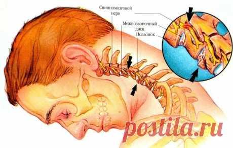 Шейный остеохондроз – весьма опасный недуг, который проявляется болями в спине, частыми мигренями, головокружением, «мушками» в глазах, ухудшением слуха и даже нарушением координации движений. К счастью, все эти симптомы можно предотвратить, если вовремя заняться очень простой и приятной ПРОФИЛАКТИКОЙ. А именно – легкими упражнениями для шейного отдела позвоночника, которые помогут не только предотвратить заболевание и сохранить здоровье, но и повысить работоспособность и ...