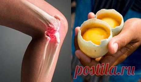 Как использовать 2 яйца для полного исчезновения боли в колени и «ремонта» суставов Проверенное средство!