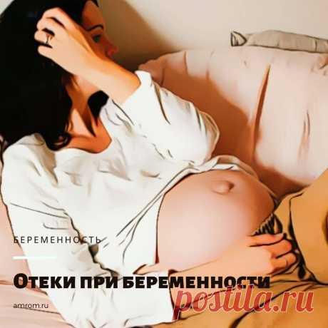 Отеки при беременности: виды, причины, диагностика, лечение. Многие женщины во время периода беременности начинают страдать от различного рода отеков. Встает вопрос: «Что является причиной отеков и что делать, чтобы от них избавиться?». В этой статье мы постараемся помочь будущим мамочкам в этом вопросе. Мы расскажем о видах отеков, симптомах, причинах, опасностях, с ними связанных, ну и, конечно же, о методах лечения данного заболевания. Итак, начнем.
