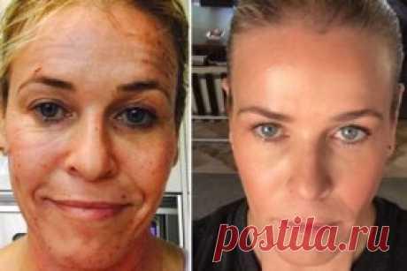 ¡La mujer limpia la cara con el medio y se ve como si ella no 45, y 25! |
