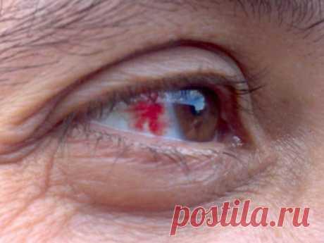Тромбоз сетчатки глаза: почему эта болезнь опасна для жизни?
