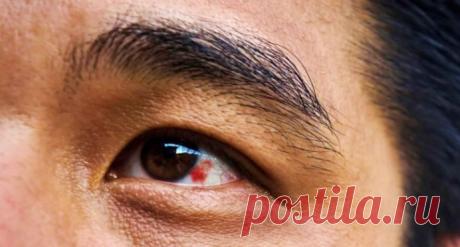 Что делать, если появилось красное пятно на глазу Красное пятно на глазу — многие из нас сталкивались с такой проблемой. Причины появления красного пятна на глазу могут быть различными: от простого механического раздражения до серьезного заболевания. Давайте вместе разберемся в причинах этой проблемы.