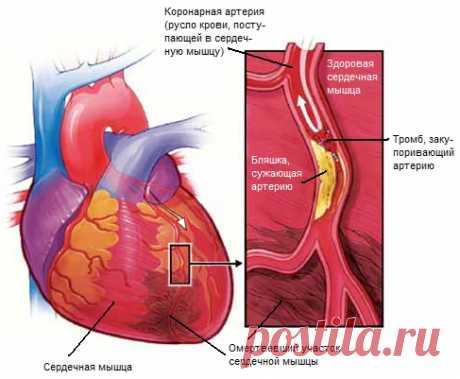 Симптомы инфаркта миокарда, которые нужно знать   Правила здоровья и долголетия