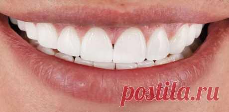 Идеальная улыбка без посещения стоматолога