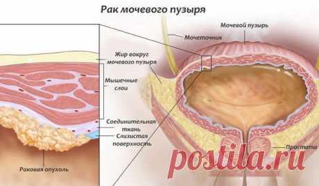Виды онкологических заболеваний