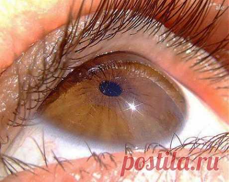 Народные средства при ослаблении зрения | Будь здоров