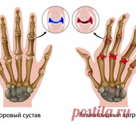 RHEUMATOID ARTHRITIS - SYMPTOMS AND TREATMENT....