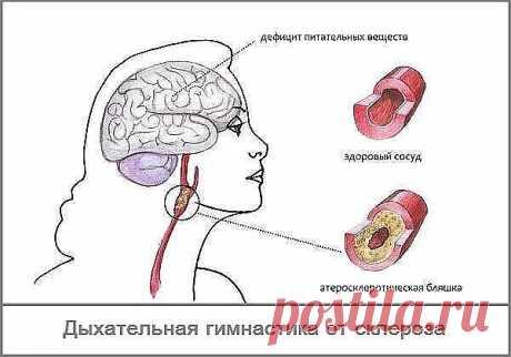 # Дыхание от склероза - дыхательная гимнастика Л.А.Анисимова.  Эта гимнастика помогает при самых разных заболеваниях, в частности, склерозе сосудов головного мозга и инсульте.Буквально через месяц серьёзных занятий вы почувствуете,что находитесь на верном пути. .Сначала следует выбрать позу: или полулежа в кресле, или на спине - кому как удобно. Расслабьтесь, отбросьте все житейские заботы и приступайте.Закрываем пальцем левой руки левую ноздрю и спокойно, очень медленно в...