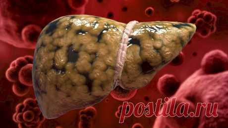 Печень и ее 13 любимых продуктов: полезные продукты для печени, которые ее очищают и защищают Через печень проходит много вредных веществ, что приводит к болезни печени. Узнай, какие продукты для печени помогут ей стать чище!