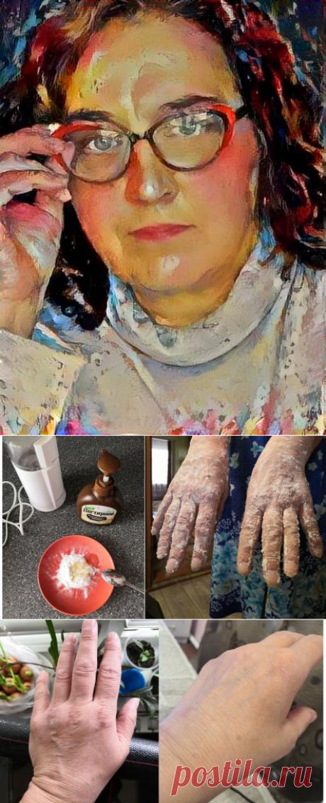Тестирую популярный совет из интернета: правда ли, что сода+соль омолаживают кожу рук | Похудеть-помолодеть | Яндекс Дзен