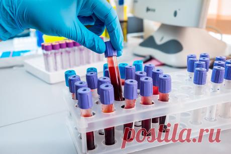 9 ключевых показателей в анализе крови, которые говорят о заболеваниях | ЛДЦ «Кутузовский» | Яндекс Дзен