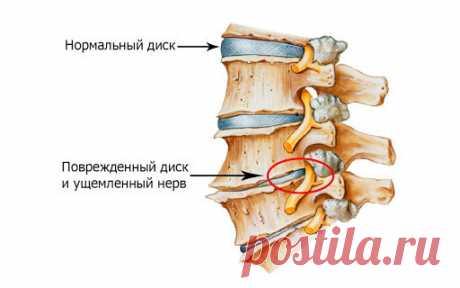 Хондропротекторы для суставов и позвоночника - ПолонСил.ру - социальная сеть здоровья - медиаплатформа МирТесен