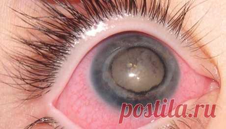 Увеит: симптомы, диагностика, профилактика и лечение. Воспаление органов зрения всегда неприятно и опасно, особенно при вовлечении в процесс сосудистой оболочки, которая участвует во всех сложных функциях глаза и служит посредником между местными (внутриглазными) и общими обменными процессами в организме человека. Данная оболочка по-другому называется увеальным трактом и представляет собой