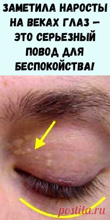 Заметила наросты на веках глаз — это серьезный повод для беспокойства! И вот что это значит… - Упражнения и похудение