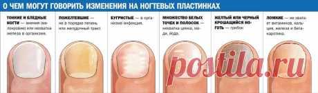 белые пятна на ногтях пальцев рук причина у женщин: 11 тыс изображений найдено в Яндекс.Картинках