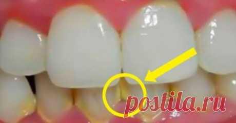 Зубной налет исчезнет спустя 5 минут! | Люблю Себя