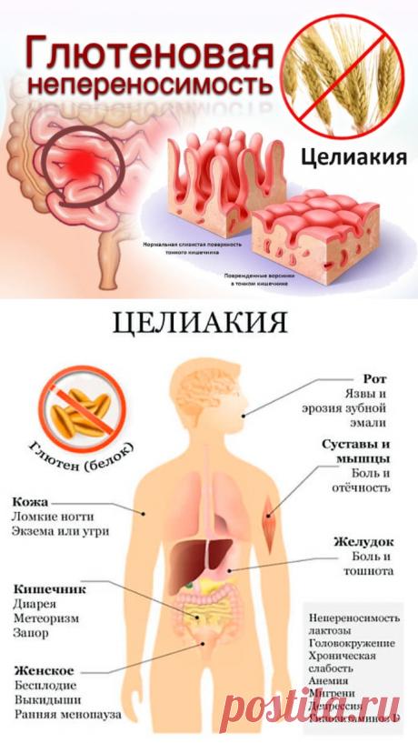 Целиакия - Доктор Натуропатии Хаим Лейбиман