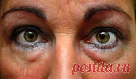 Варианты устранения синяков и мешков на коже под глазами
