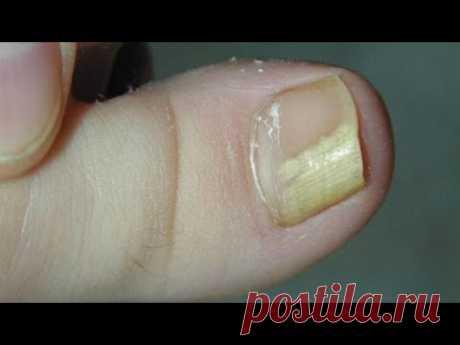 (83) ПРОСТОЙ СПОСОБ вывести ГРИБОК на ногтях , КОПЕЕЧНЫЙ СПОСОБ - YouTube
