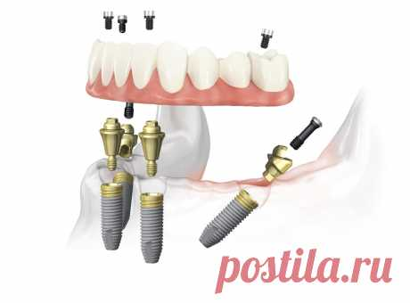 Можно сделать все зубы на четырех имплантатах, а можно ли на двух?   записки зубного детектива   Яндекс Дзен