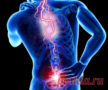 Боли в спине: каковы наиболее частые причины | Безумный Доктор | Яндекс Дзен