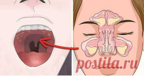 Если вас мучает синусовая головная боль прежде всего проверьте эту скрытую связь!