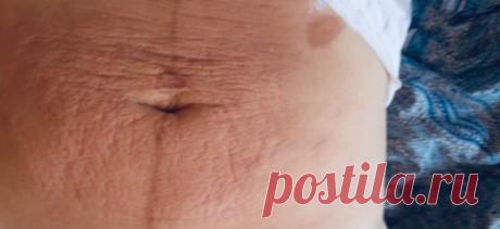 Две тайские методики чтобы сильно похудеть и подтянуть дряблую кожу после похудения. За 5-10 дней - Всё про всё