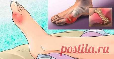 Как удалить мочевую кислоту и избавься от боли в суставах? / Будьте здоровы