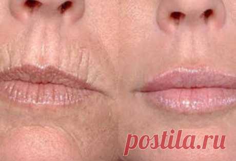 Как легко избавиться от глубоких морщин вокруг рта: 5 простых масок, творящих чудеса со стареющей кожей! Все косметологи считают, что кожа, которая находится над верхней губой и в области глаз, наиболее подвержена к воздействию окружающей среды. Над верхней губой как раз появляются вертикальные морщины....