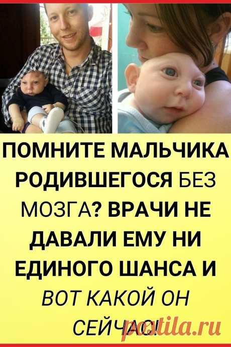Помните мальчика, родившегося без мозга? Врачи не давали ему ни единого шанса и вот какой он сейчас!