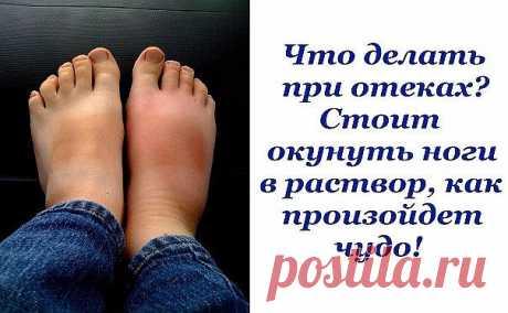 Опухшие ноги — больше, чем простая неприятность | Краше Всех