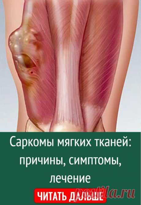 Саркомы мягких тканей: причины, симптомы, лечение