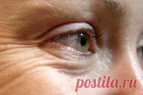 Как я убрала морщины вокруг глаз: пошаговая инструкция | 50+ | Яндекс Дзен