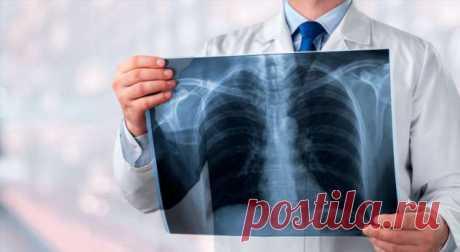 6 признаков «тихой» пневмонии, которые нельзя пропустить . Милая Я