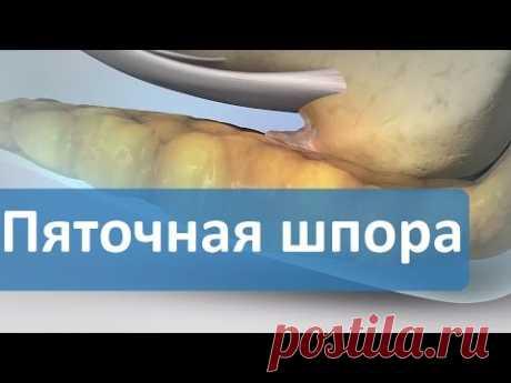 La espuela de talón. La Pregunta-respuesta. Los centros de Moscú de Dikulya sobre la espuela de talón.